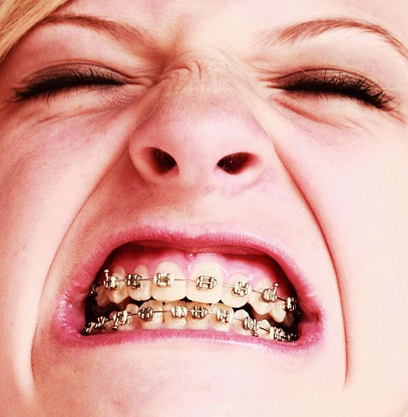 586px-free_awesome_girl_with_braces_close_up.jpg